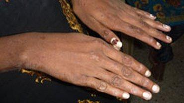 Durch welche Hände ging das Garn? Sumangali-Mädchen aus dem indischen Bundesstaat Tamil Nadu spinnen in Knechtschaft das Garn für die Textilindustrie.